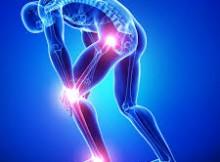 rheumatoid arthritis care