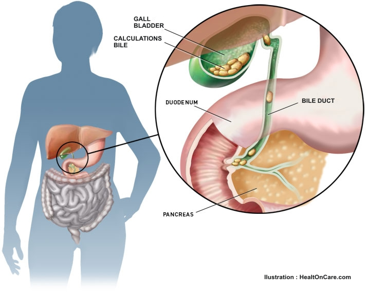 Ayurvedic Dissolution Therapy for Gallstones